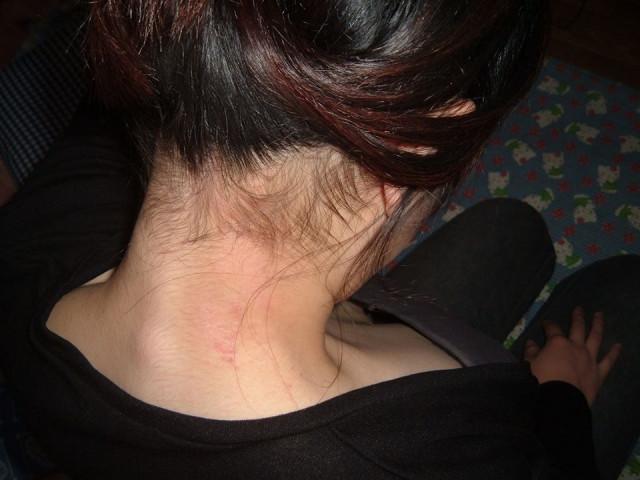 首のアトピー施術後
